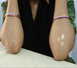 Leucoderma before and after